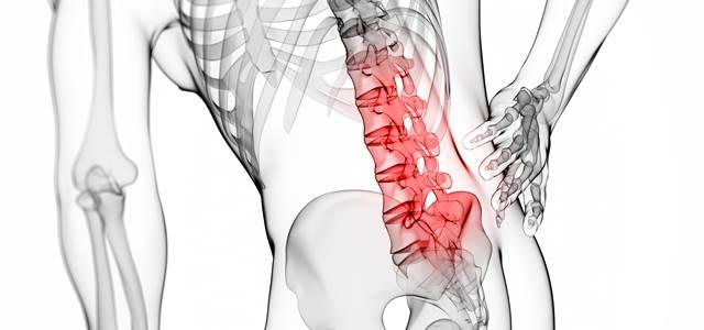 腰椎椎間板ヘルニアを図で解説!足のしびれや排尿障害はなぜ起こる?
